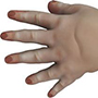 Congenital Hand Problems